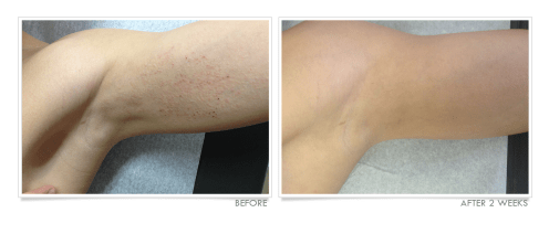 Atopic Dermatitis Before & After
