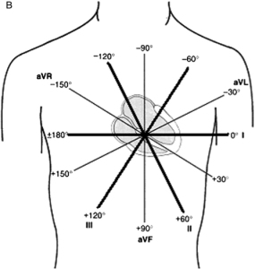 The combination of unipolar and bipolar limb leads allowed for higher detailed EKGs along the frontal plane