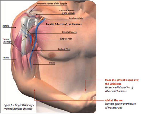 The Humeral Intraosseous Line The Original Kings Of County