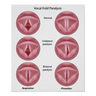 Paradoxical Vocal Fold Motion Vocal Cord Dysfunction The
