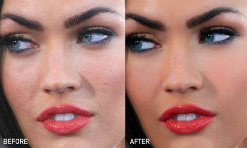 Megan Fox ha le cicatrici dell'acne...