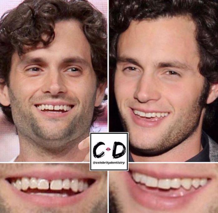 cliomakeup-denti-star-teamclio-14
