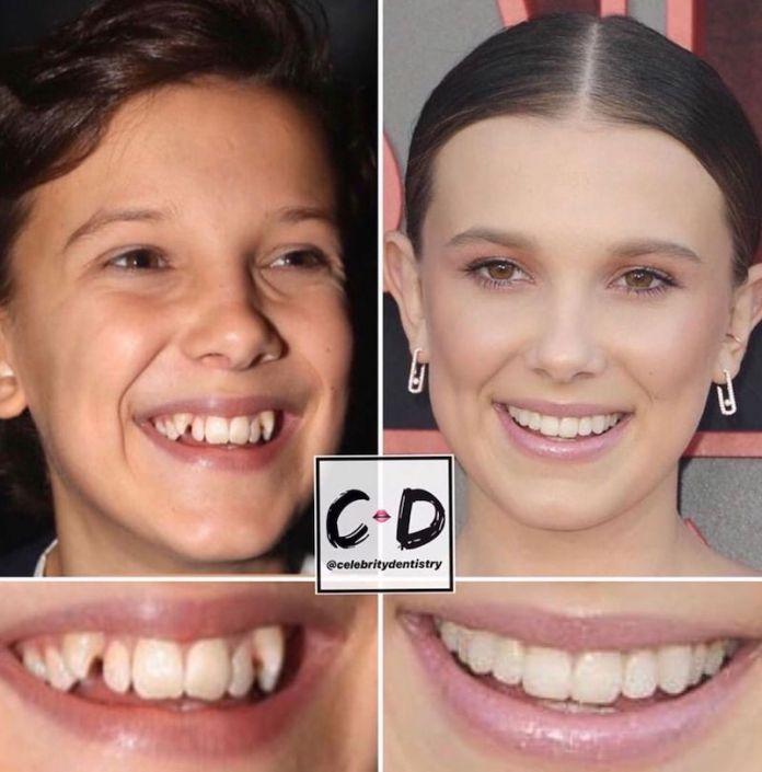 cliomakeup-denti-star-teamclio-15