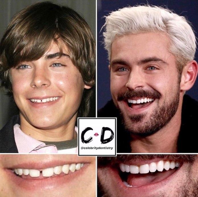 cliomakeup-denti-star-teamclio-18
