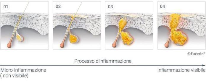 cliomakeup-eliminare-brufoli-3-infiammazione
