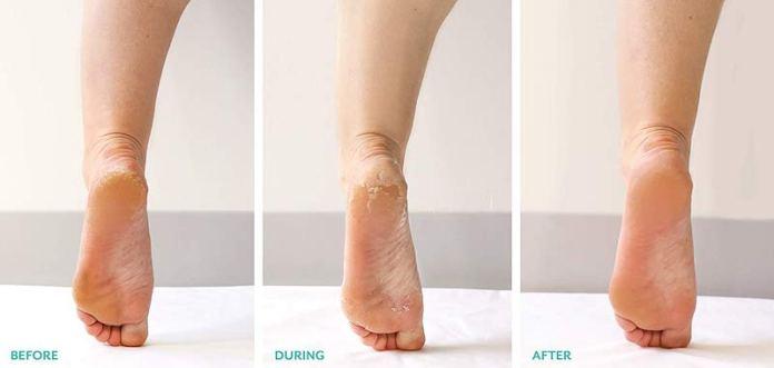 cliomakeup-rituali-bellezza-6-peeling-piedi