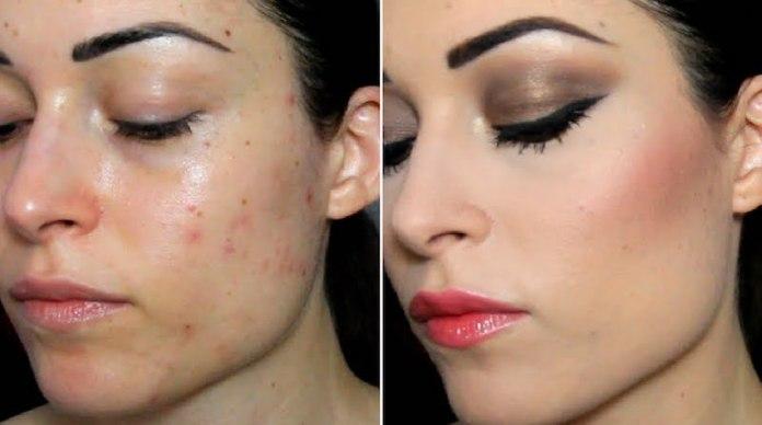 cliomakeup-fondotinta-per-pelle-con-acne-10-cheryl-pandemonium-acne