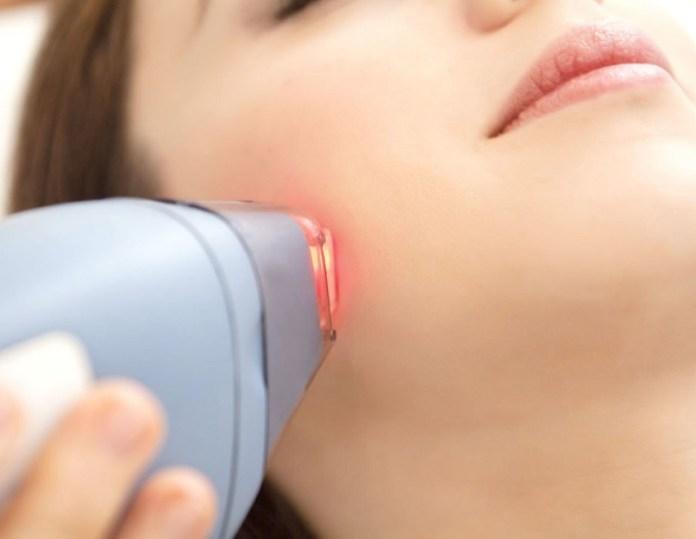 cliomakeup-epilazione-laser-diodo-808-4