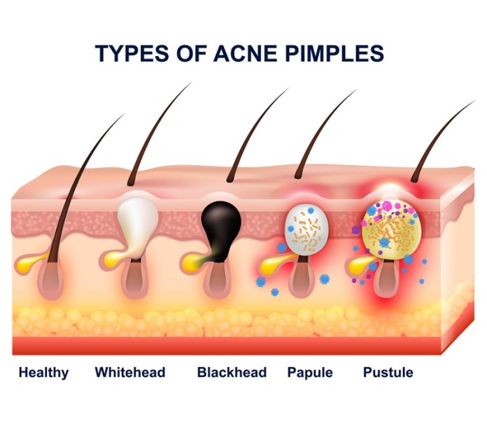 cliomakeup-dieta-acne-3-formazione-acne