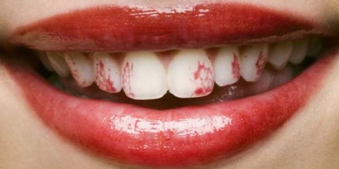 cliomakeup-errori-rossetti-liquidi-13-rossetto-sui-denti