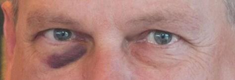 Het blauwe oog in volle glorie.