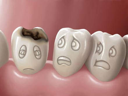 How does a cavity form on your tooth?
