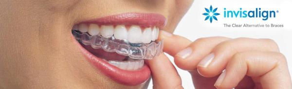 Straight Teeth with Invisalign