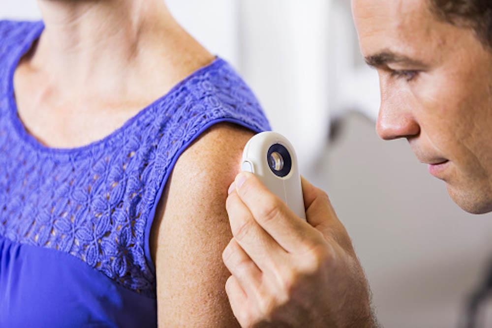 Skin cancer screenings