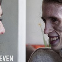 Dossier Anorexia, Emma wil leven