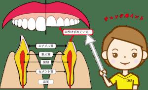 削れた歯説明