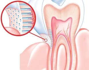 causas de sensibilidade nos dentes