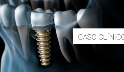 Considerações sobre a utilização dos implantes imediatos carregados em região estética
