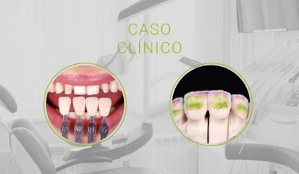 Ortodontia reabilitadora do diagnóstico 3D à estética