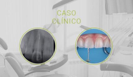 Caso Clínico SDI: restabelecendo estética e função de incisivo central fragilizado