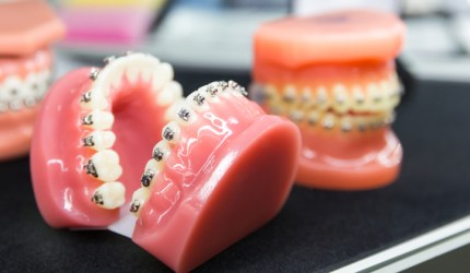 A Movimentação Dentária e a Ortodontia