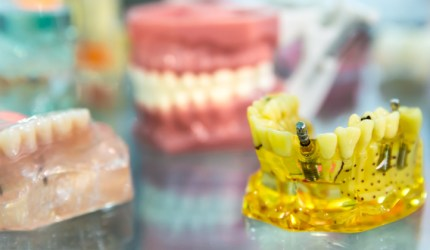 10 dicas para você não passar apuros com implantes dentários