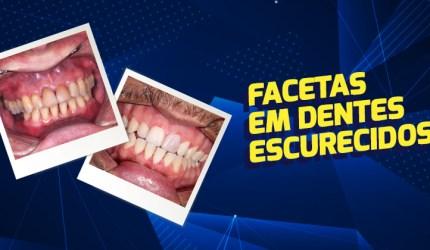 Utilizando facetas em casos de dentes escurecidos
