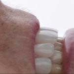 Caso clínico: tratando complicações estéticas