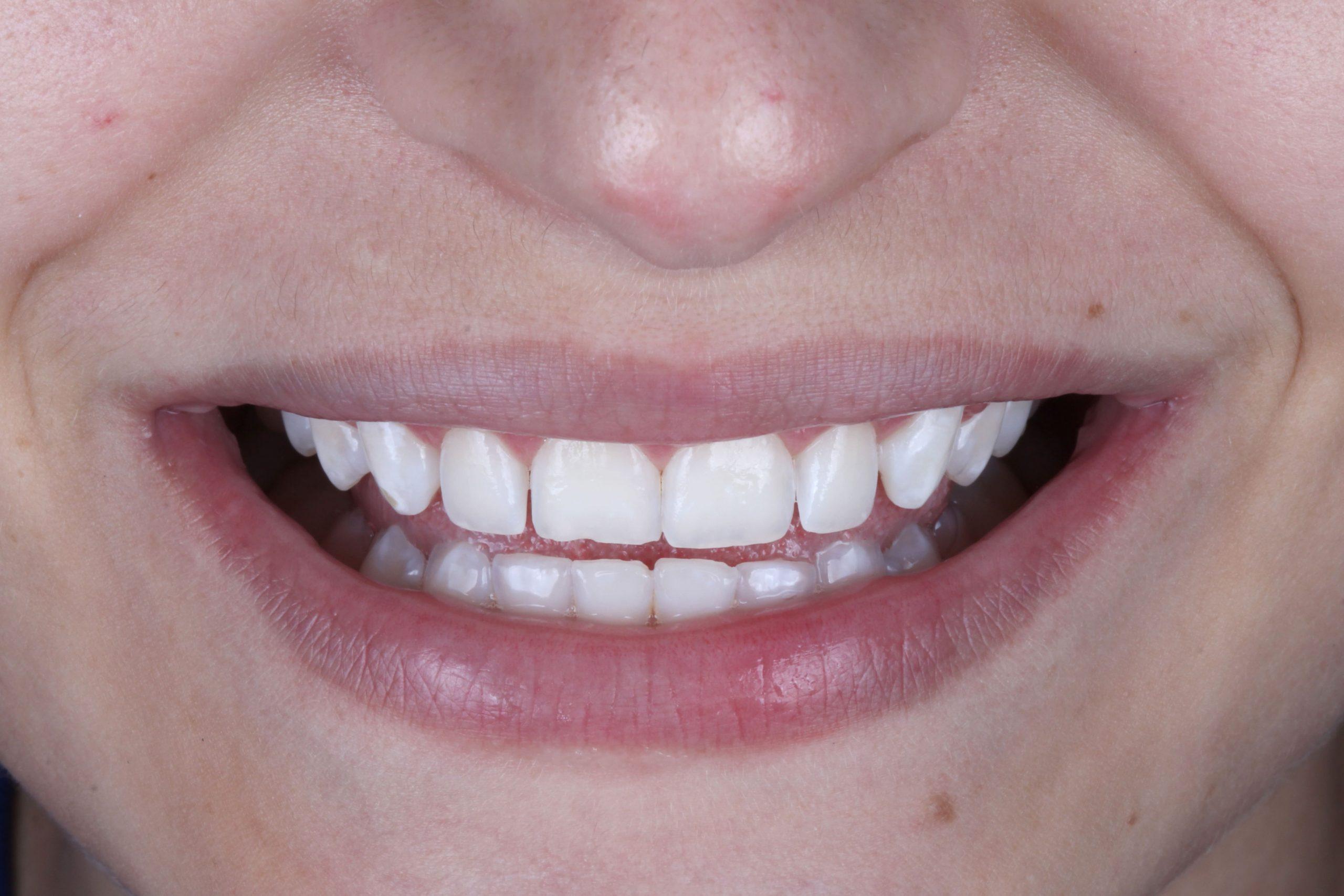 sorriso final da paciente sem a fluorose dental