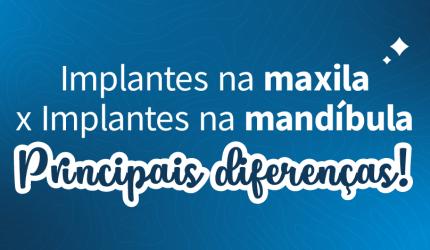 Principais diferenças da cirurgia de Implantes na maxila e na mandíbula