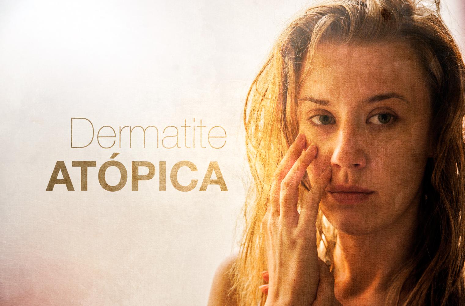 Prevenções para a Dermatite Atópica