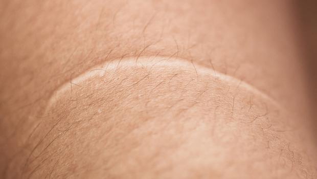 Resultado de imagem para A cicatriz