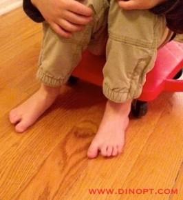 toe walking treatment ideas