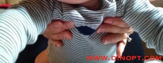Torticollis Treatment Tummy Time