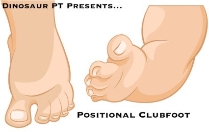 positional clubfoot