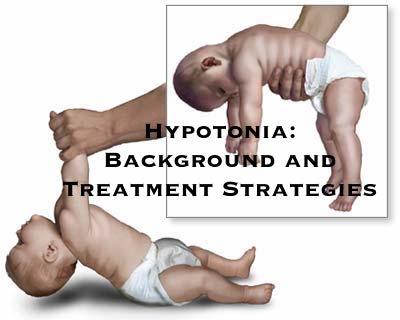 hypotonia treatment