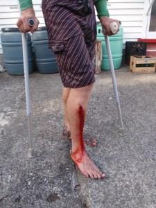 Ash's leg wound