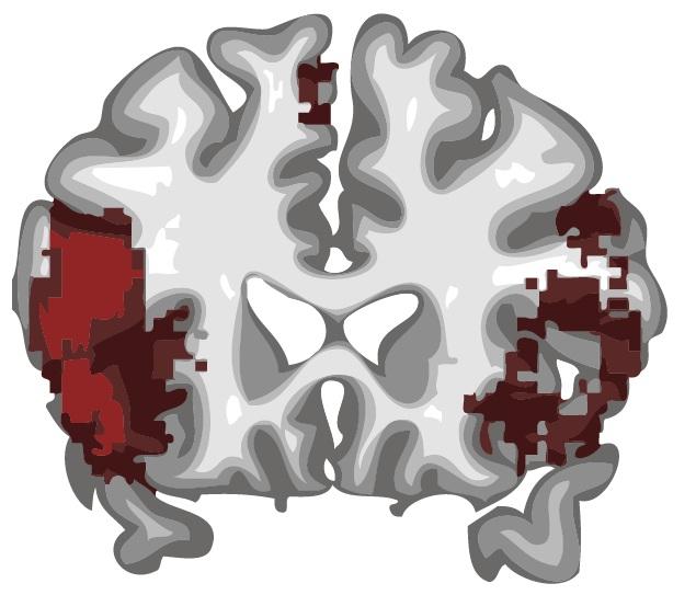 Zo maakt een MRI-scanner hersenplaatjes