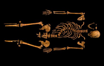 Skeleton of King RIchard III showing his curved spine.