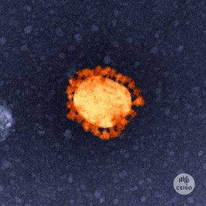 Microscopic image of coronavirus stained orange.
