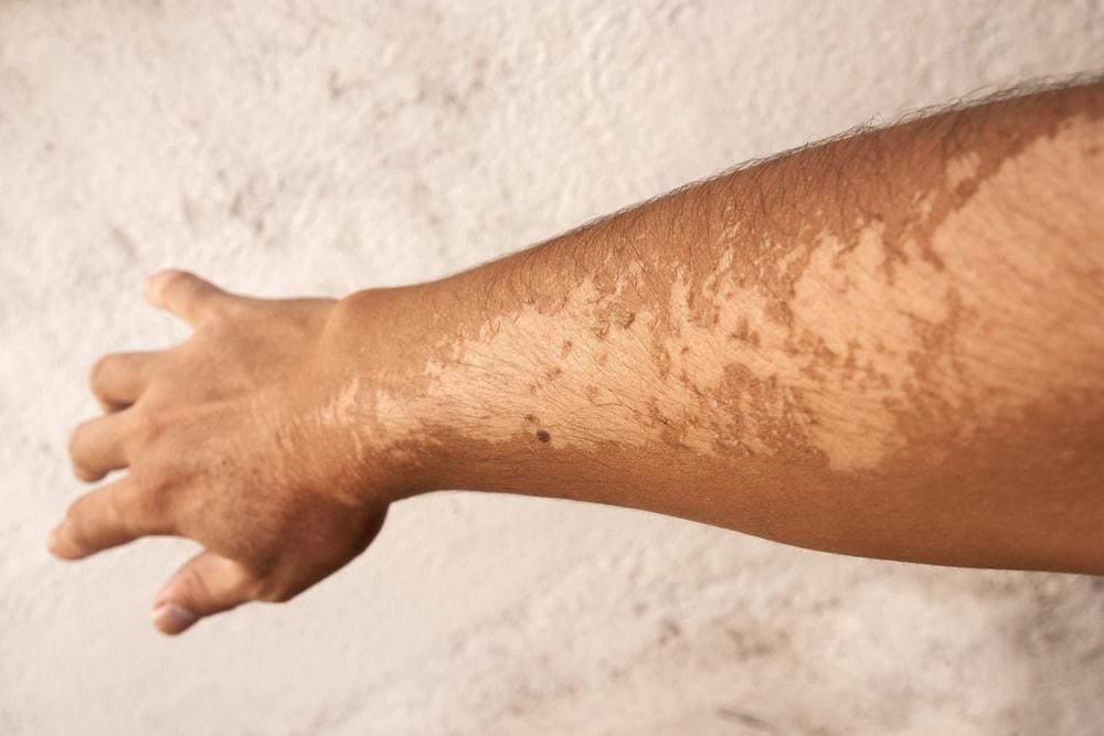 5 doenças de pele causadas pelo excesso de exposição solar