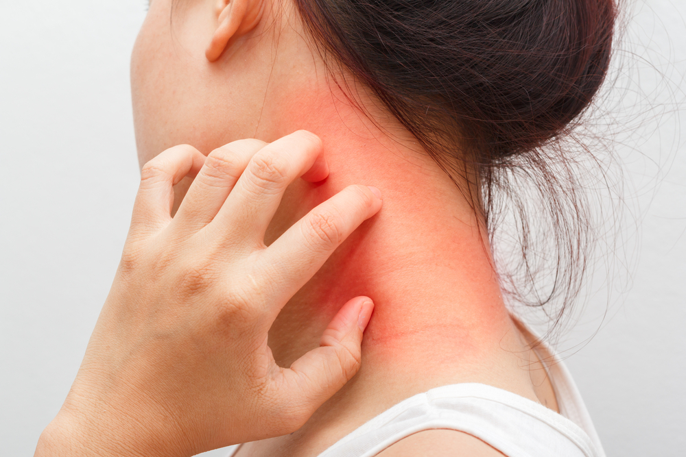 Dermatite de contato alérgica: conheça as causas, sintomas e tratamentos