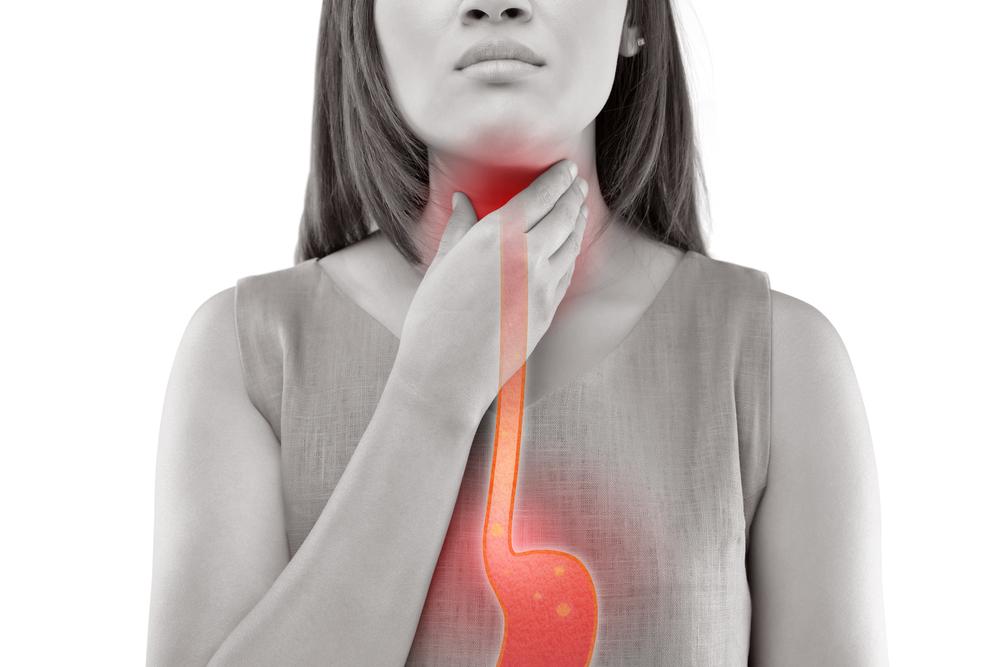 O que é esofagite?
