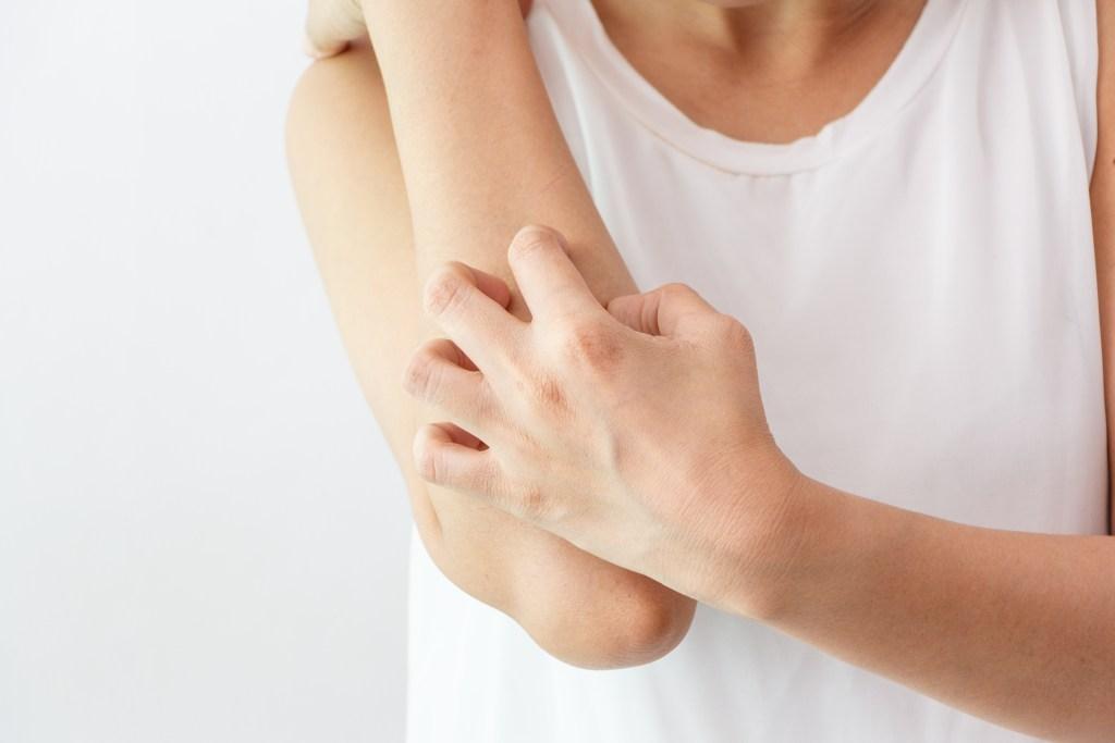 Urticária Crônica Espontânea é mais comum do que você pensa