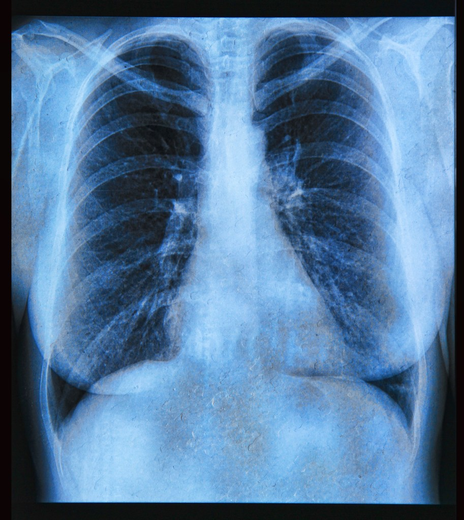 Entenda a Fibrose Pulmonar