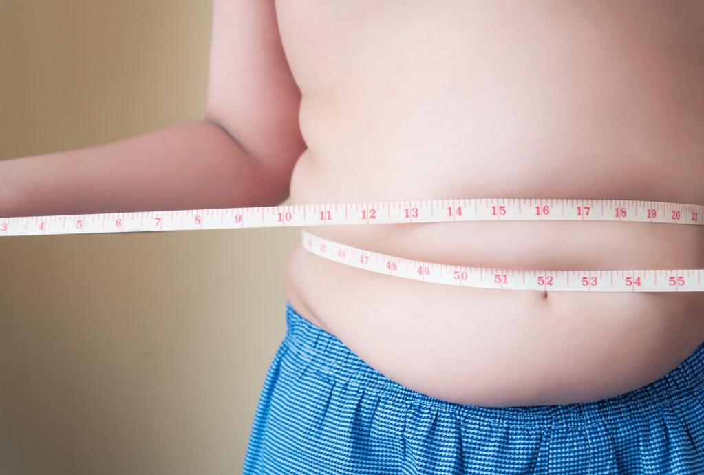 12 fatos que você precisa saber sobre obesidade