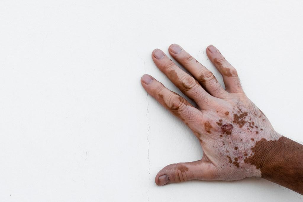 Vitiligo: o que é, causas, sintomas e tratamento