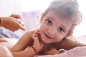 Catapora: causas, sintomas e tratamento