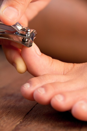 Providing Relief for Ingrown Toenail Pain