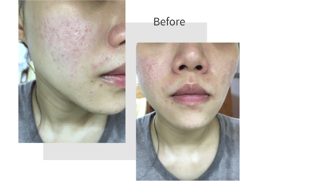 Pores before and after